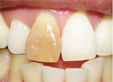 3 Saran Dokter Tentang Cara Mengatasi Gigi Berlubang Pakargigi Com