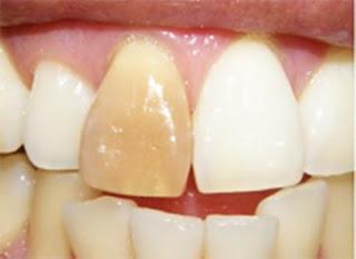Gigi palsu dari bahan komposit mulai menghitam