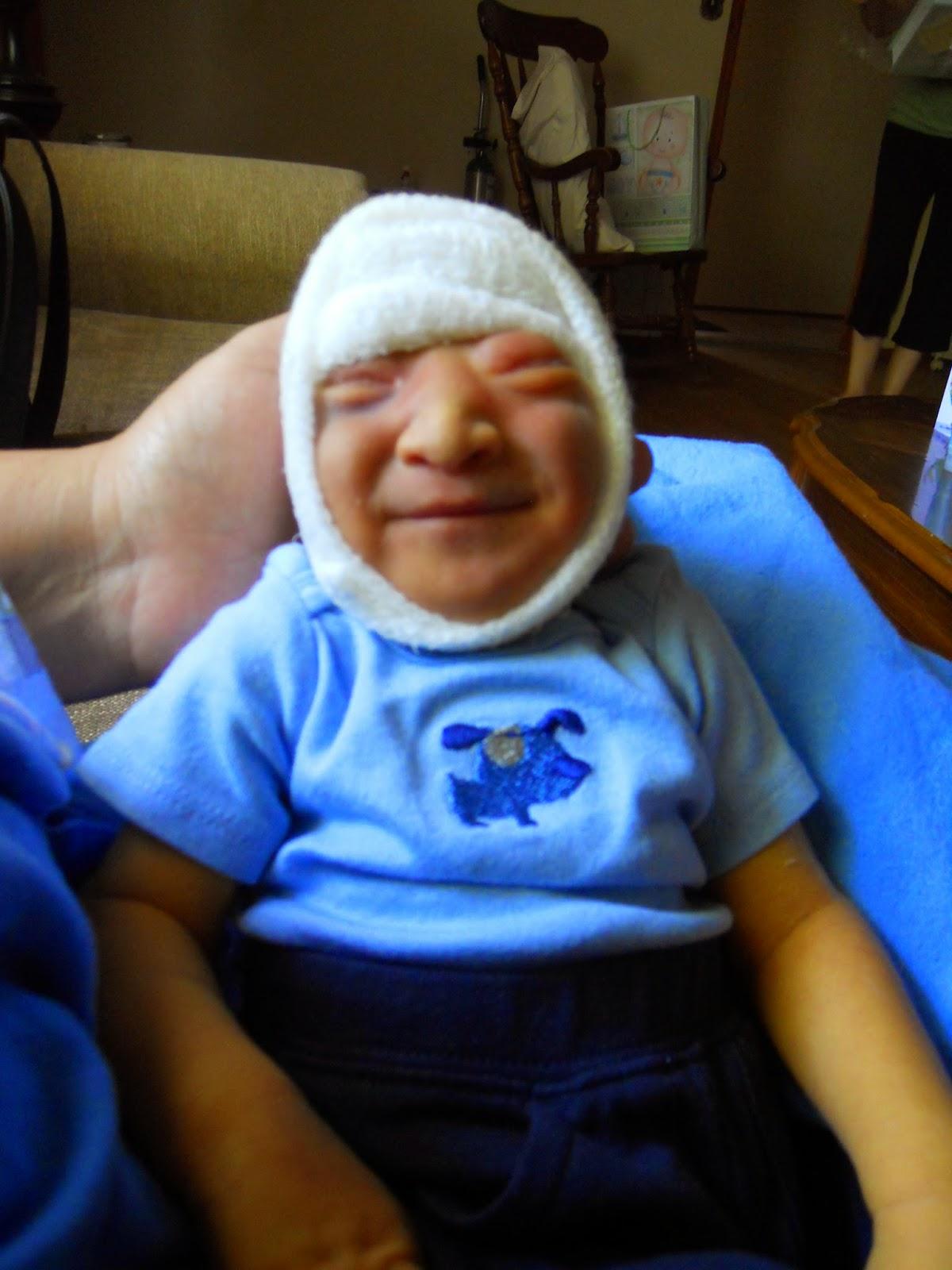 Ob/Gyn Updated : Anencephalic Newborn as an organ donor ...