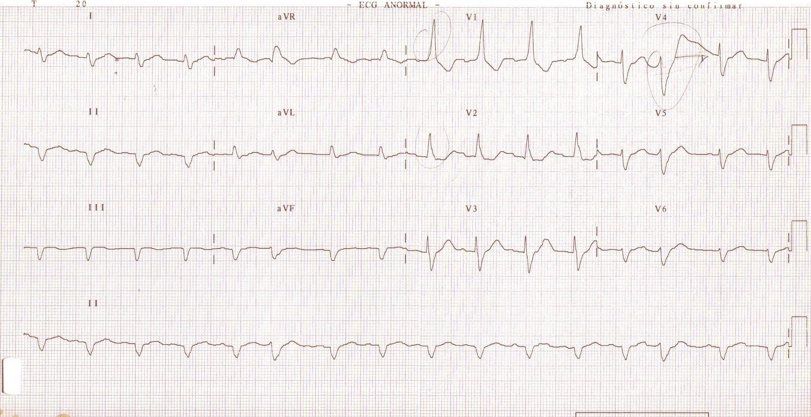 apuntes de cardiolog u00eda  abril 2011