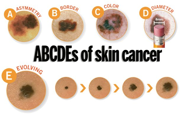 "the abcd rule detecting the symptoms Melanoma: signs and symptoms patients with melanoma: this skin cancer can form on your skin,  gagnon, l ""dermatologists better at detecting melanoma."