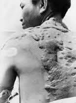 sakit kulit, limbah radiaoktif, bahaya zat radioaktif, kontaminasi zat radiaktif