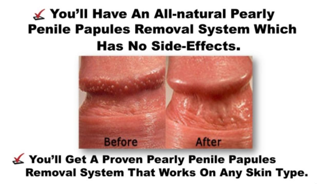 How to get rid of pearly penile