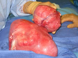 ketumbuhan fibroid