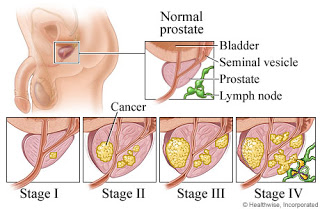 some the symptoms of patients with prostate cancer