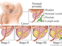 SOME THE SYMPTOMS OF PATIENS WITH PROSTATE CANCER