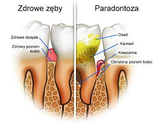 Porównanie zęba zdrowego i zaatakowanego przez paradontozę.