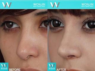 foto sebelum dan sesudah operasi plastik hidung-1