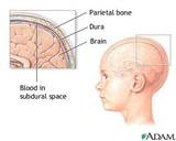 Pediatric Stroke