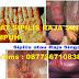 Obat Sipilis Paling Efektif