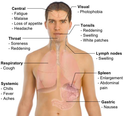 Symptoms of viral infection nhs jobs
