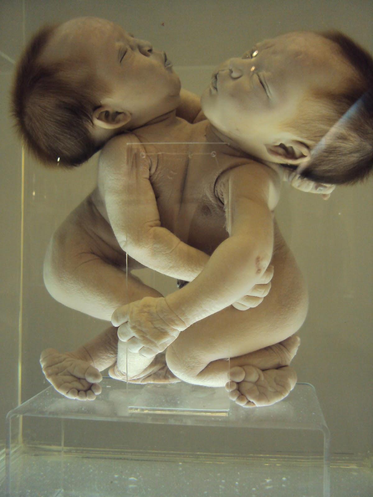 Gemelos-Siameses: mayo 2012