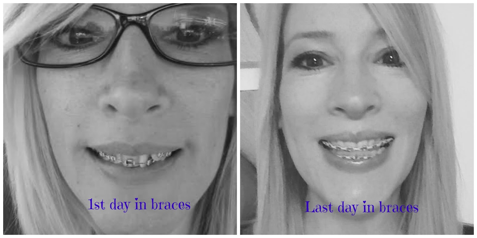 Adult Braces - My Journey