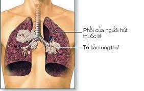 Chế độ ăn uống, kiêng kị cho người bị mắc bệnh ung thư phổi
