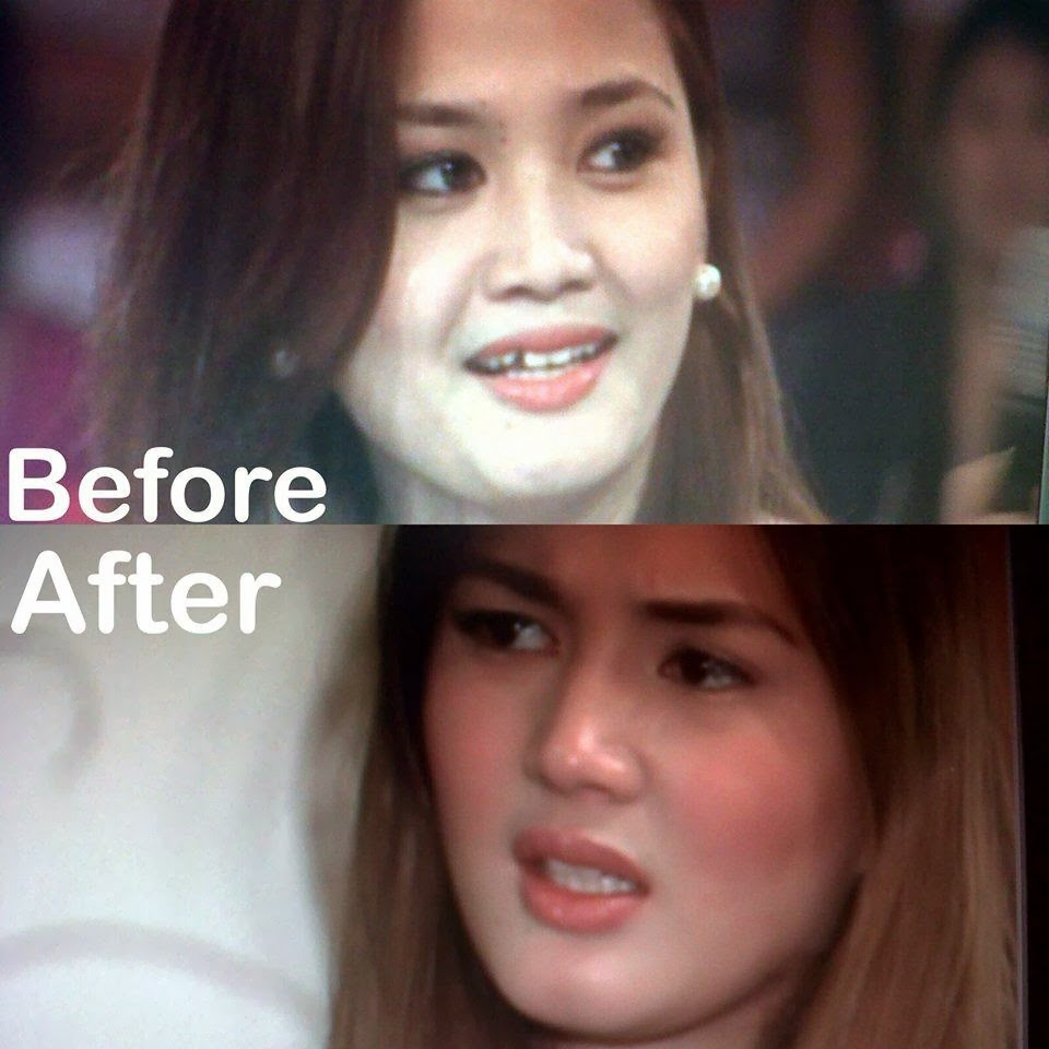 Deniece Millet Cornejo Before and After Picture, Deniece Millet Cornejo, Vhong Navarro manyak