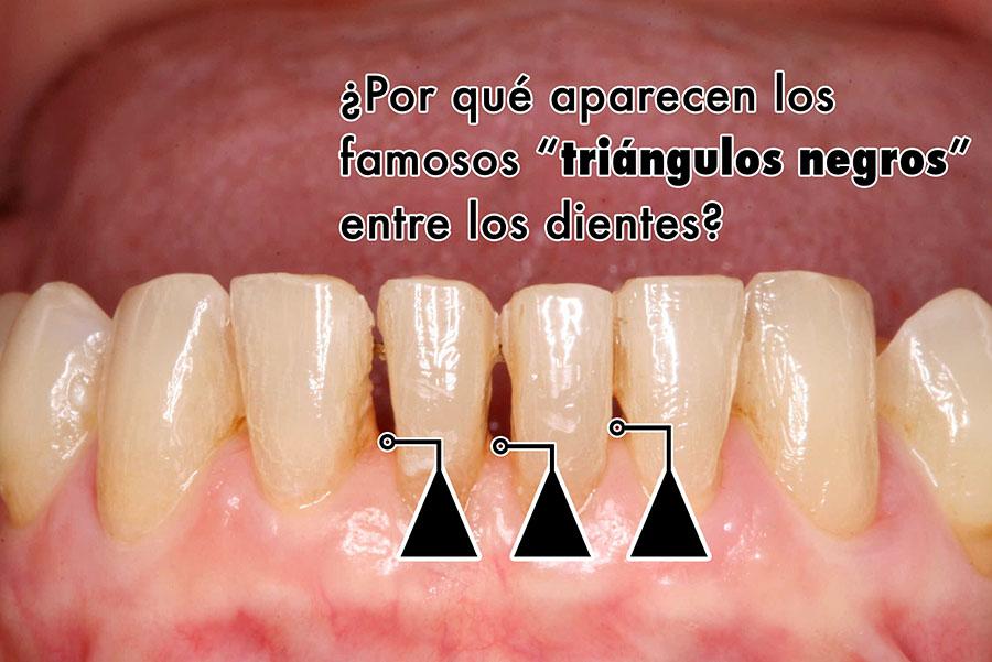 Glosario Dental