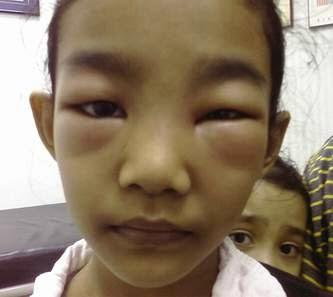 Triệu chứng bệnh viêm cầu thận cấp ở trẻ em