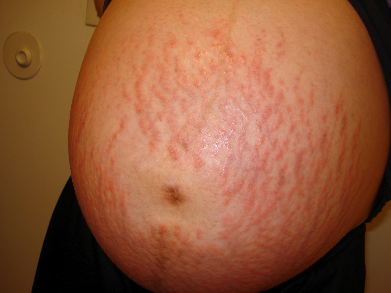 Pruritic urticarial papules and plaques of pregnancy ...
