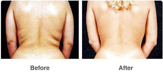 Comparing Liposuction
