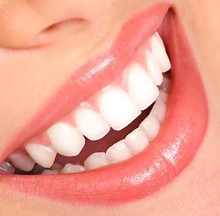 5 نصائح لتبييض الاسنان بطريقة صحية