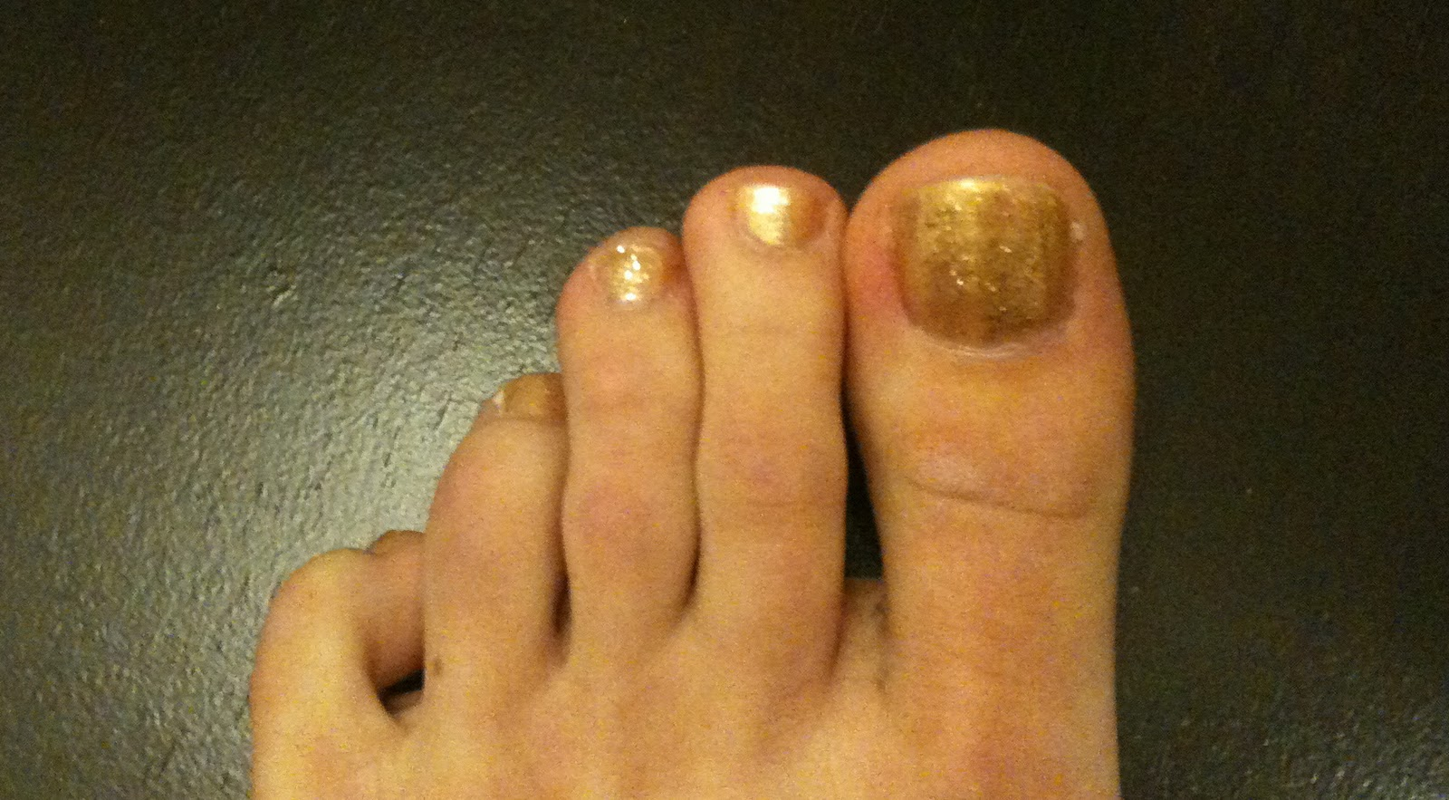 how to get rid of yellow toenails from nail polish