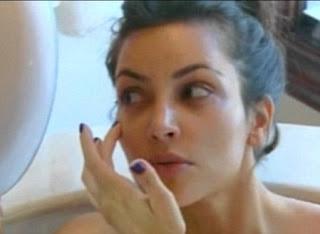 Kim Kardashian Botox Injections