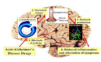 Medical Treatment and Therapy of Alzheimer's Disease