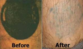 Natural tattoo removal march 2013 for How effective is tattoo removal cream
