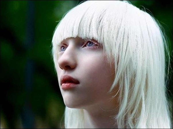 A menina albina mais linda do mundo