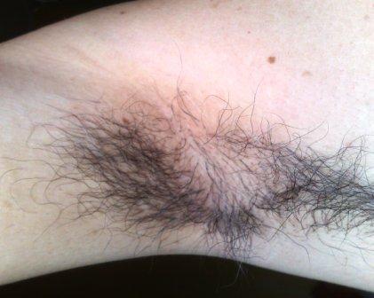 underarm itch and rash