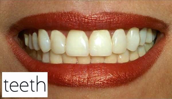 3 Cara Rahasia Memutihkan Gigi Kuning Secara Alami Pro Rahasia