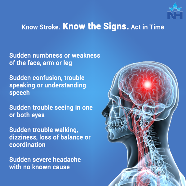 Know the early signs of stroke and act in time