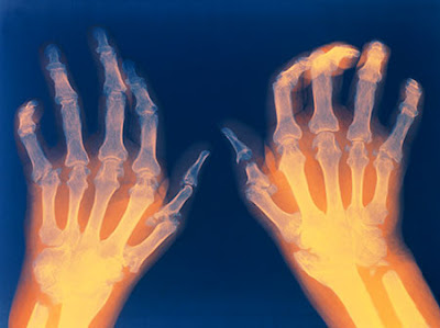 Arthritis: 6 steps to relieve its impact