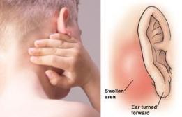 Hasil gambar untuk benjolan di leher dan belakang telinga