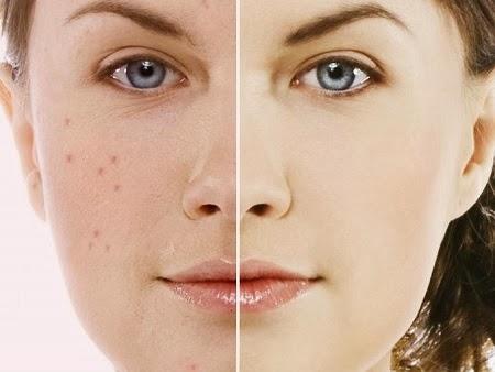 Tips para Eliminar Espinillas, Belleza y Salud