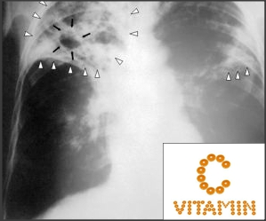 vitamin C can kill the bacteria Mycobacterium tuberculosis
