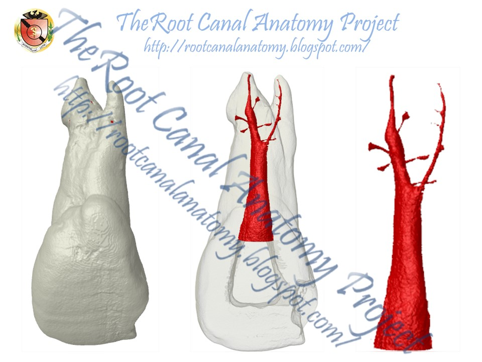 The Root Canal Anatomy Project: Two-Rooted Maxillary Central Incisor