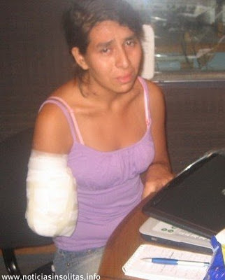 cortan el brazo cuando fue con un dolor estomago
