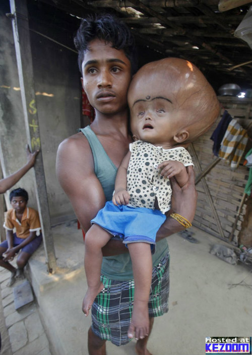 Kepala Budak Usia 16 Bulan Membesar Dengan Luarbiasa-Runa-Begum-