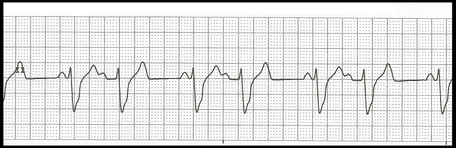 ekg rhythm strips of heart block Handle Violence