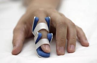 Fraturas nas pontas dos dedos das mãos