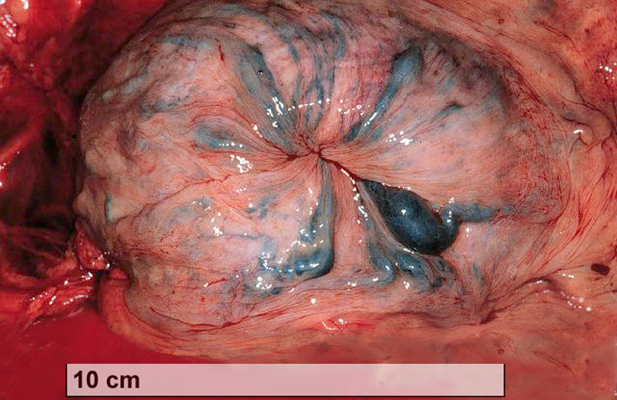 Vericose vein in vulva