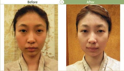 Face Reduction for Underbite Jaw Cases