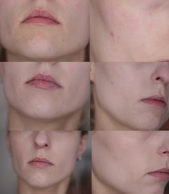 Rimmel Perfection foundation before and after pictures