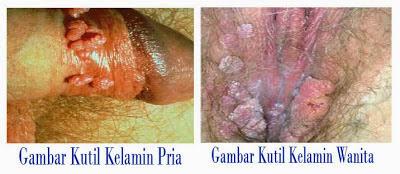 Penyakit kutil kelamin pria dan wanita