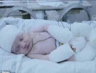 ولادة طفل بدون جلد ورأسه شفاف يظهر من خلاله المخ !!