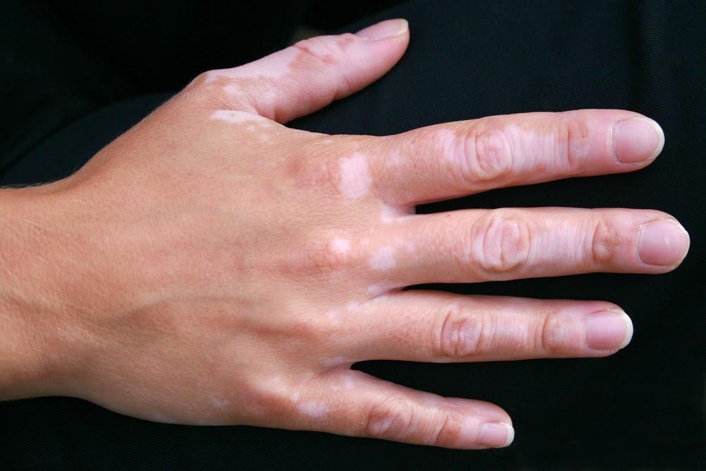 Vitiligo-Tratamento e sintomas