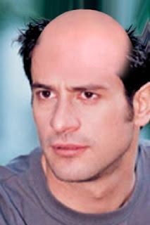 georgoulisbald ΔΕΙΤΕ:Πως θα ήταν οι διάσημοι έλληνες καραφλοί!!!