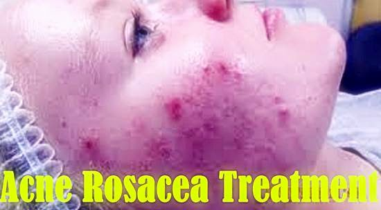 Acne Vulgaris Rosacea Difference