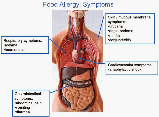 Food Allergy Symptoms You Have To Know Allergy Symptoms Testing